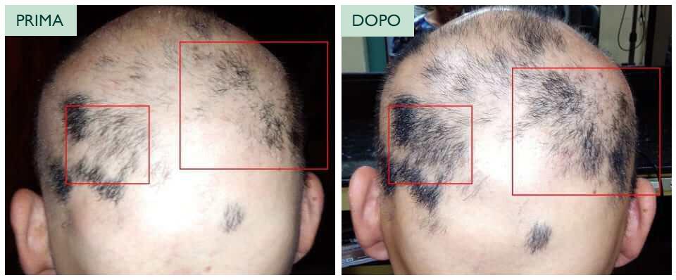 Klori Trattamento Lozione alopecia areata